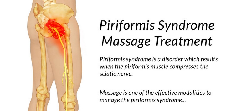 Massage Therapy Can Help Alleviate Piriformis Syndrome Symptoms